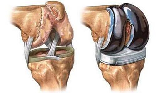 """Дипломная работа """"Реабилитация при эндопротезировании коленного сустава"""""""