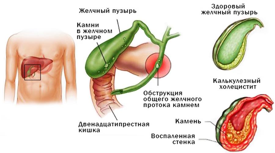 Диагностика и лечение острого холецистита