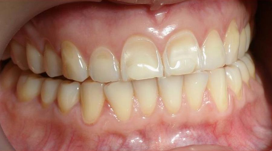 Курсовая работа - Некариозные поражения зубов