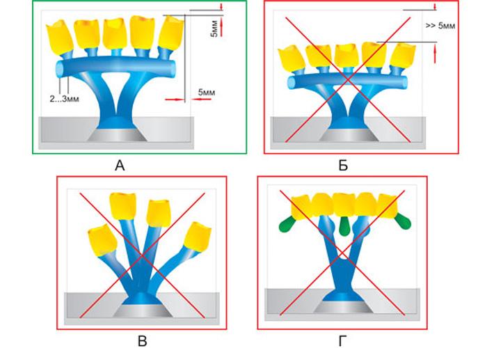Виды литниковых систем, применяемых при литье различных ортопедических конструкций